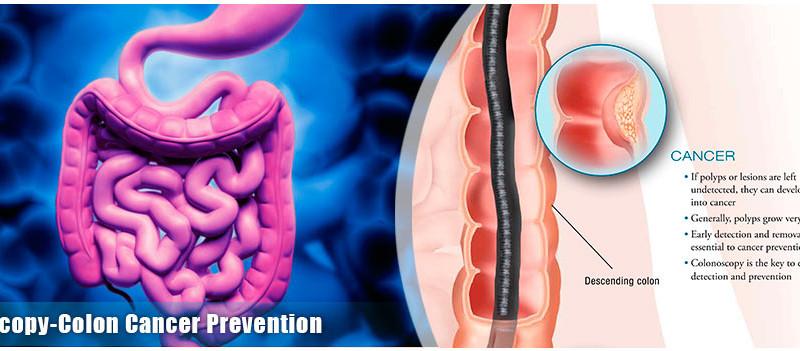 ung thư đại trực tràng - yếu tố nguy cơ và phòng tránh