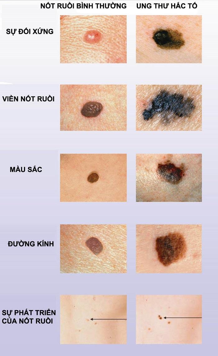 Hình ảnh so sánh giữa nốt ruồi bình thường và ung thư da tế bào hắc tố. (Nguồn: Internet)