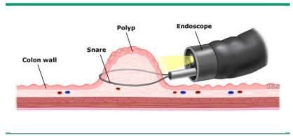 Cắt bỏ polyp trong khi nội soi đại tràng