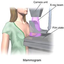Chụp nhũ ảnh để tầm soát ung thư vú
