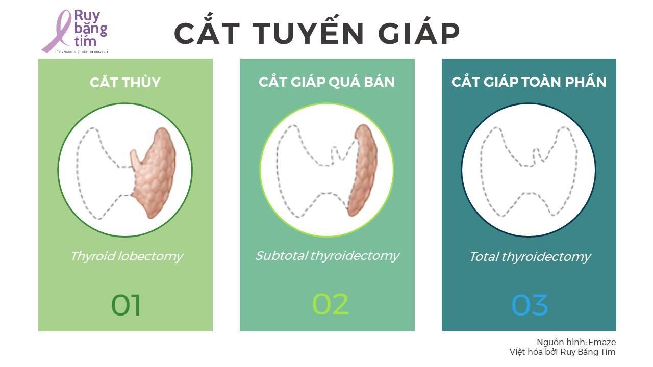 cat-tuyen-giap