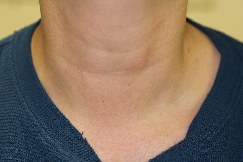 Sẹo mổ sau phẫu thuật tuyến giáp
